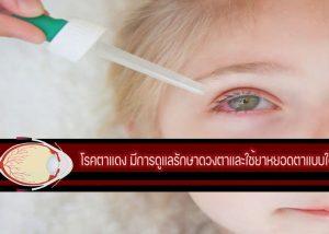 โรคตาแดง มีการดูแลรักษาดวงตาและใช้ยาหยอดตาแบบใด